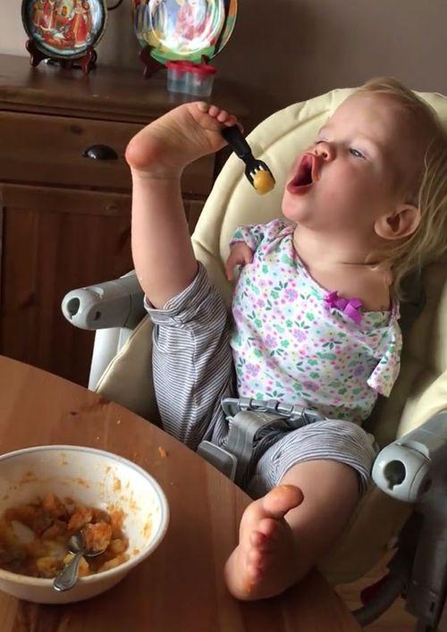 Un bebè sense braços aprèn a menjar amb els peus