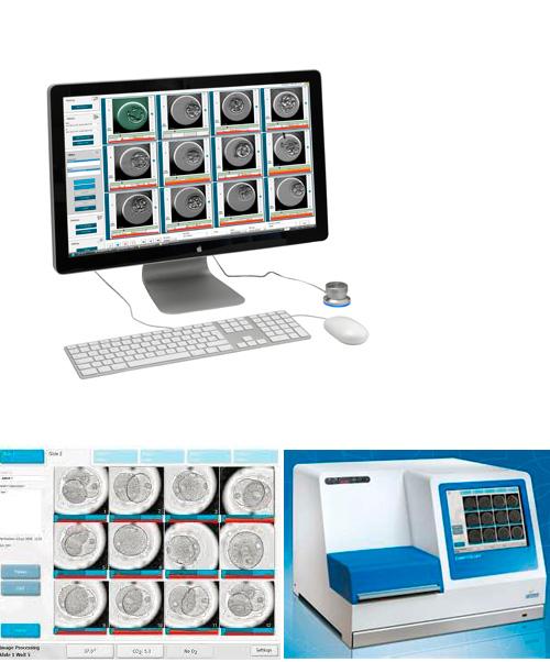 L'embryoscope, nova tecnologia puntera en reproducció assistida